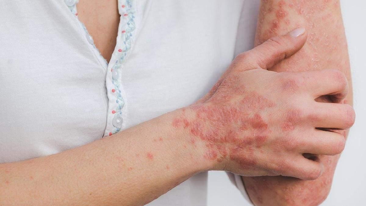 Псоріазом можна заразитись: міфи про шкірне захворювання - Здорово