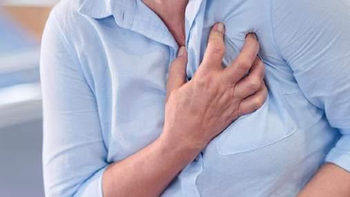 Міжреберна невралгія: симптоми, як при інфаркті міокарда