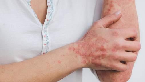Псориазом можно заразиться: мифы о кожном заболевании